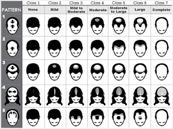 The Ludwig Hair Loss Classification Scale for men and women.