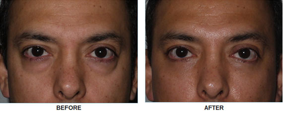 Eye fat surgery: before and after