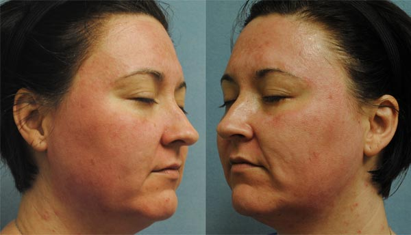 Microneedling Before and After