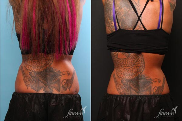 Before and after picture of a patient who underwent a coolsculpting treatment to flanks.
