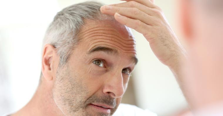 How to Choose a Hair Loss Product, Even If You Don't Know What to Do
