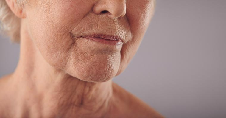 What Causes Crepey Skin and How It's Different From Wrinkles