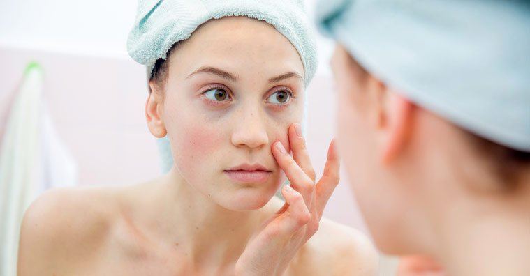 At-Home Treatments for Dark Circles Under Your Eye